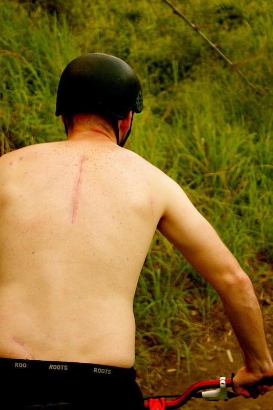 After having a head on collision with a stump in July 2010, doctors cut a bone<br /> out of my hip and used it to repair my back. The helmet I was wearing saved my life.