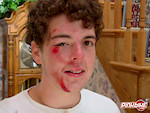 After my crash at the skatepark