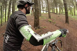 Developing a 3D Printed Arm Brace for MTB - Video