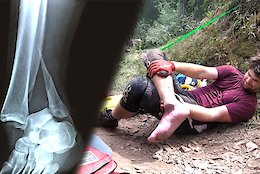 Graphic: Broke My Ankle Riding DH - Video