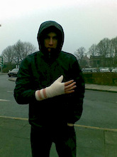 Gee damages thumb!
