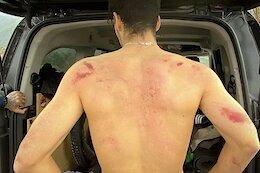 Angel Suarez Breaks 6 Ribs While Testing Bikes