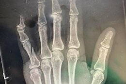 Jill Kintner Breaks Finger After High-Speed Impact with a Tree