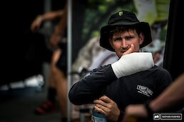 Brendan Fairclough Has Hand Infection Due to Splinter