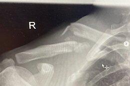 Joe Breeden Withdraws from Maribor World Cup Due to Broken Collarbone