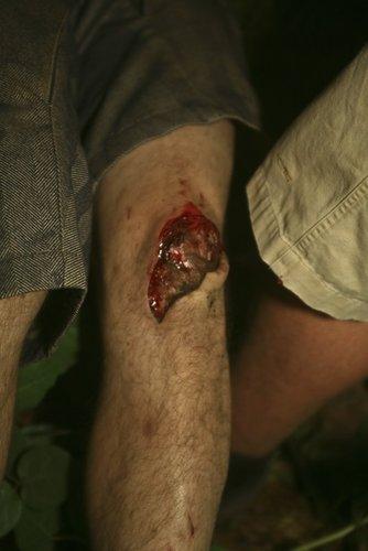 Kona Trevor's nasty little walking incident, GET WELL SOON DUDE!