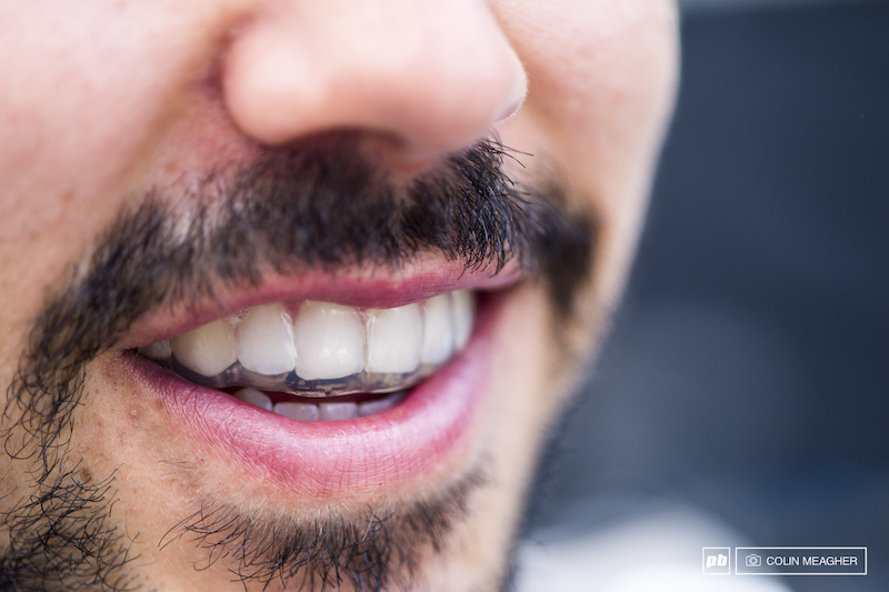 Marcello Gutierrez modeling his brand new mouth guard. I never thought about wearing one until I broke out a couple teeth. Now I always wear one. It has some other benefits too. When asked Gutierrez claims it aids his breathing and also works in the event of a crash to prevent concussions.