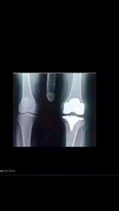 Me new knee