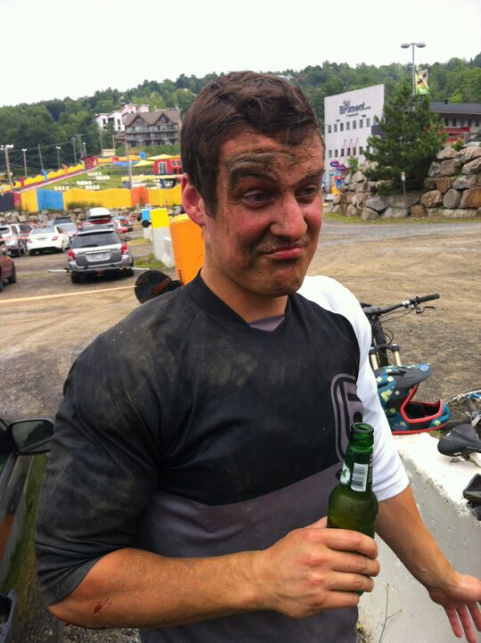 At the end of a day at the bike park... face meets ground. Still intact + cold beer, not a bad day I guess.