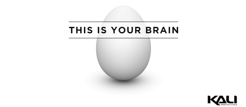 This Is Your Brain - article image