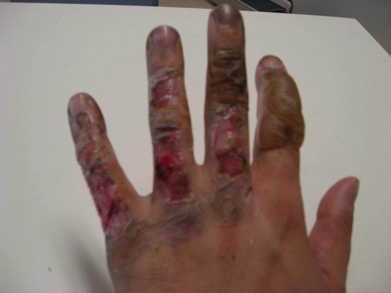 So I burnt my hand this summer...can you believe it looked like this and now you can't even tell it happened!