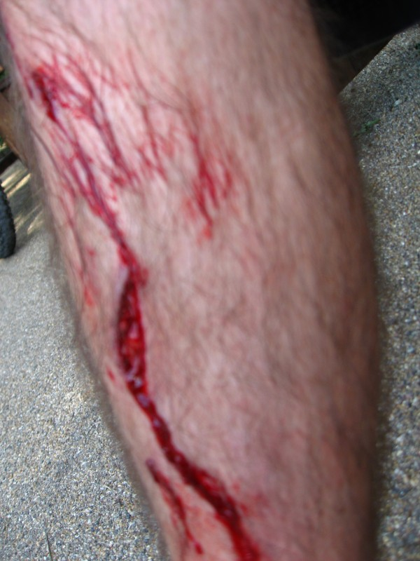 Gash in my leg from my peddles, needed 5 stitches