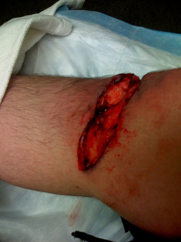 Wipped out gashed open my left knee,needed 45 stitches and plenty of narcotics for the severe pain and swelling