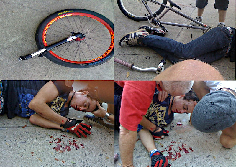 Sam jumped the transfer, unfortunately upon landing, his forks snapped from the steerer, throwing him off the bike, sending him unconscious, and knocking out his teeth  He did wear a helmet