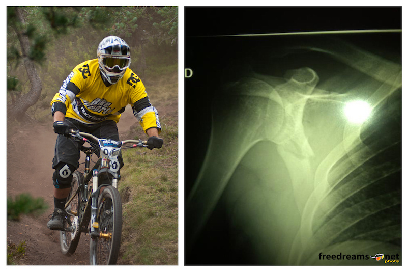 Javier Guerrero broke his shoulder blade in the qualifying heats