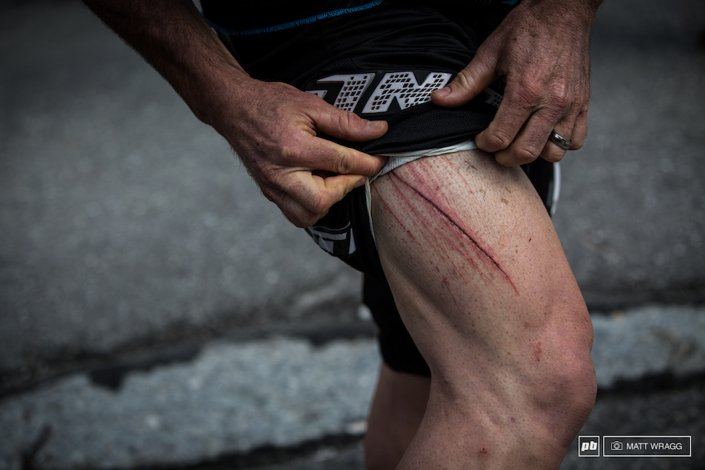 On the last stage yesterday Jared Graves had a couple of big crashes leaving him with this monster gash down his leg. Explaining how sore he was this morning he said that on the first stage today he was just trying to hold onto the bike and get down the hill.