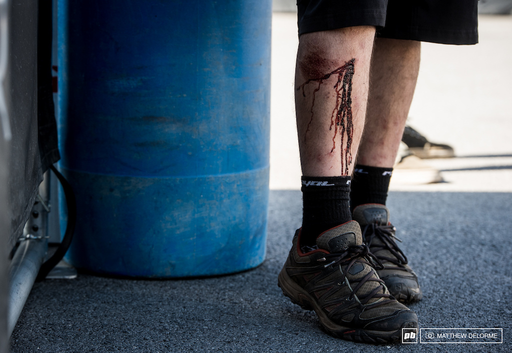 Trek videographer Vittorio Platania found some slick rocks that had a bit of bite off track today. With a gash like that he should definitely get some chicks.