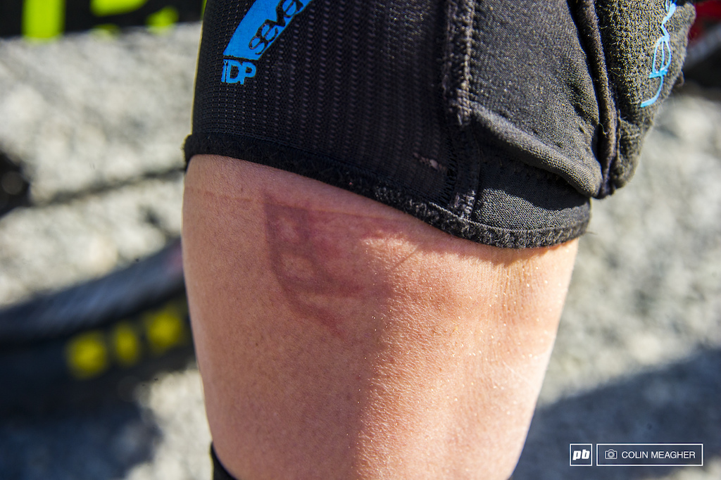 Casey Brown was racing with a fresh brake rotor brand on her right leg.