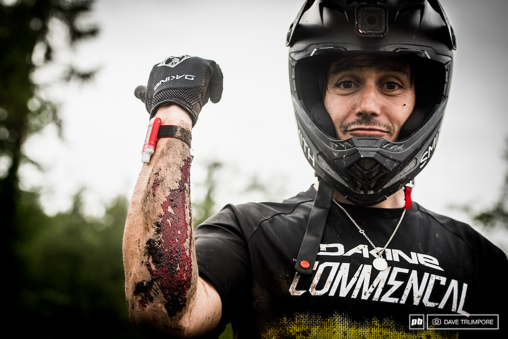 A day of nothing but crashed left Yoann Barelli a bit bloody and in need of a few stitches.