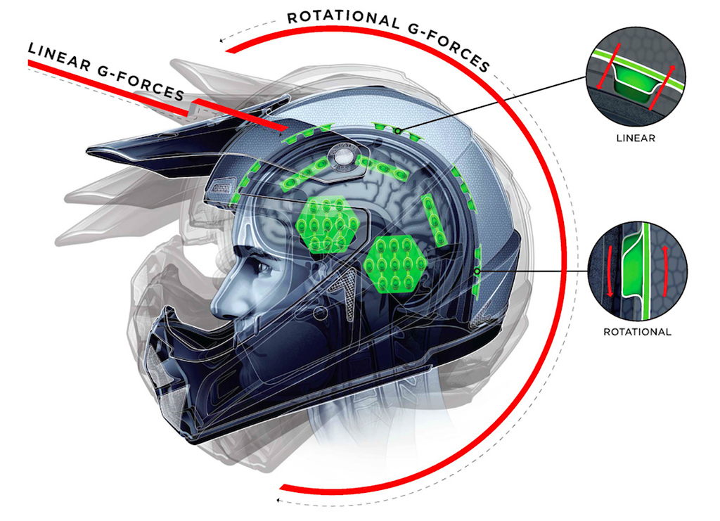 Concussions and LDL