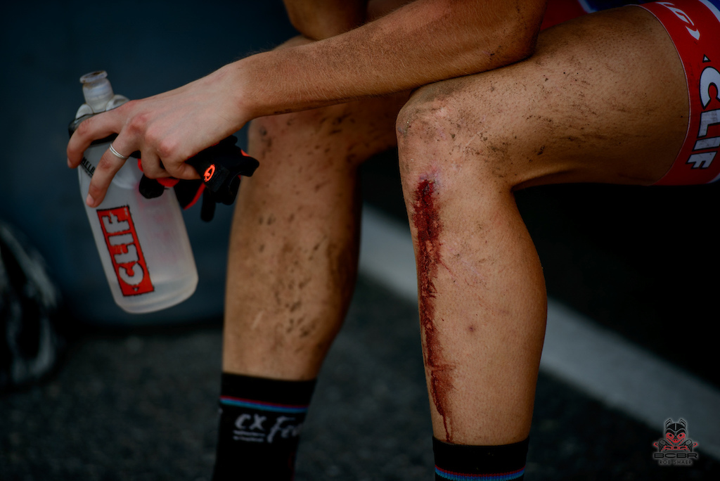 This is a part of the life of a mountain biker. Blood is common, but giving up is not.