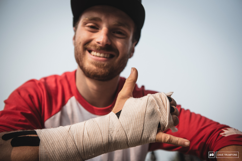 Down but not out. Jesse Melamed should be back in action in just a few short weeks.