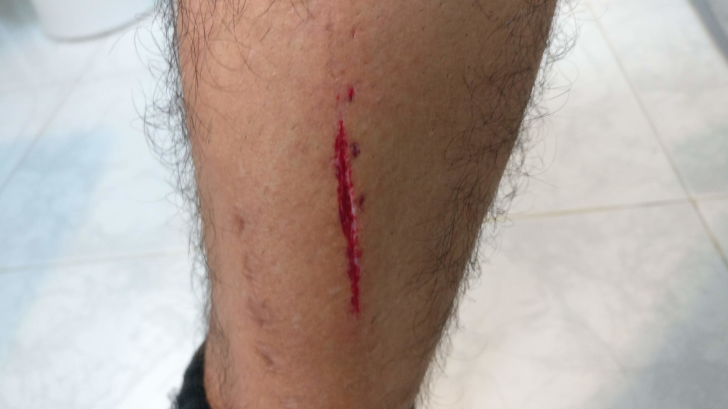 Downhill Urbano 2019 Leg after crash