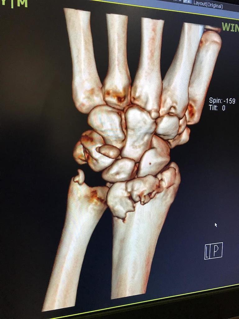 Sam s broken hand
