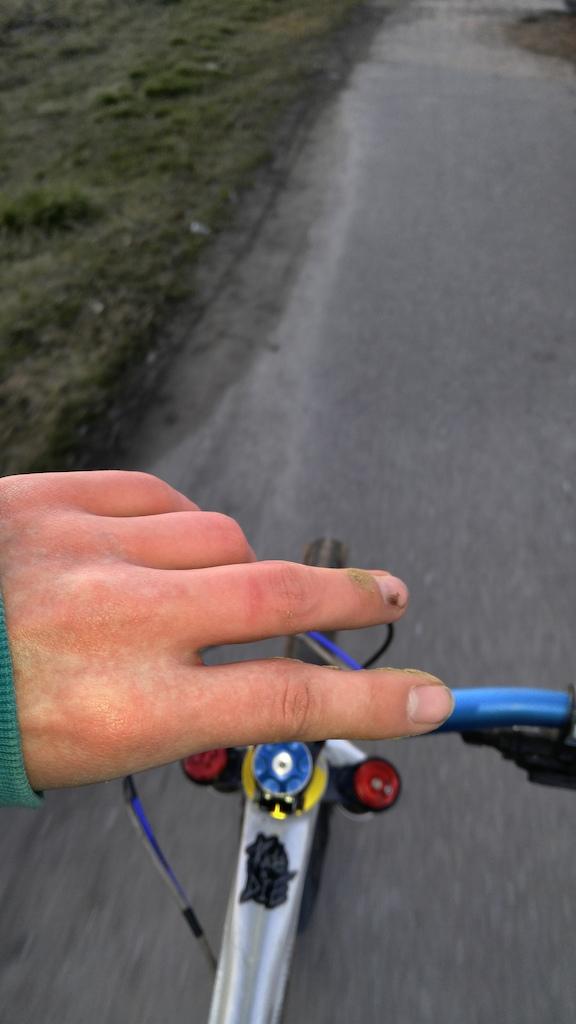 Broken and sprained finger