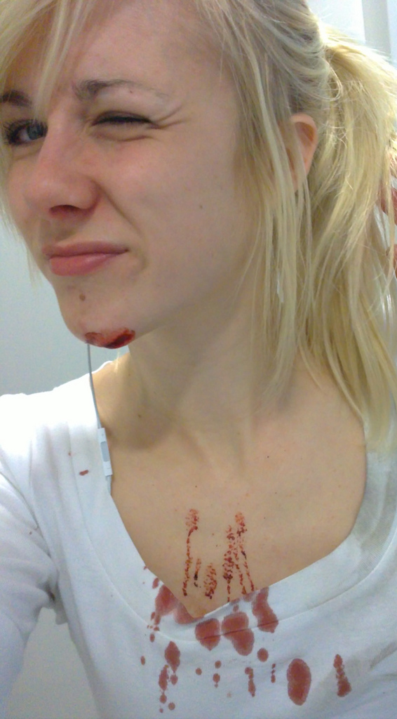 5stitches. no it didnt hurt. youl never understand how funny it was. i ate shiiiiiiiiit hahaha