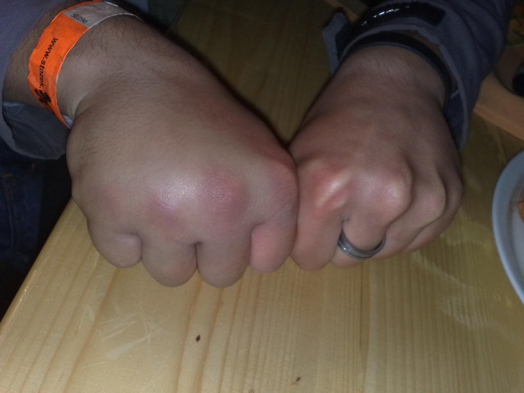 Bruised hand and broken two fingers at Wisła PP #1