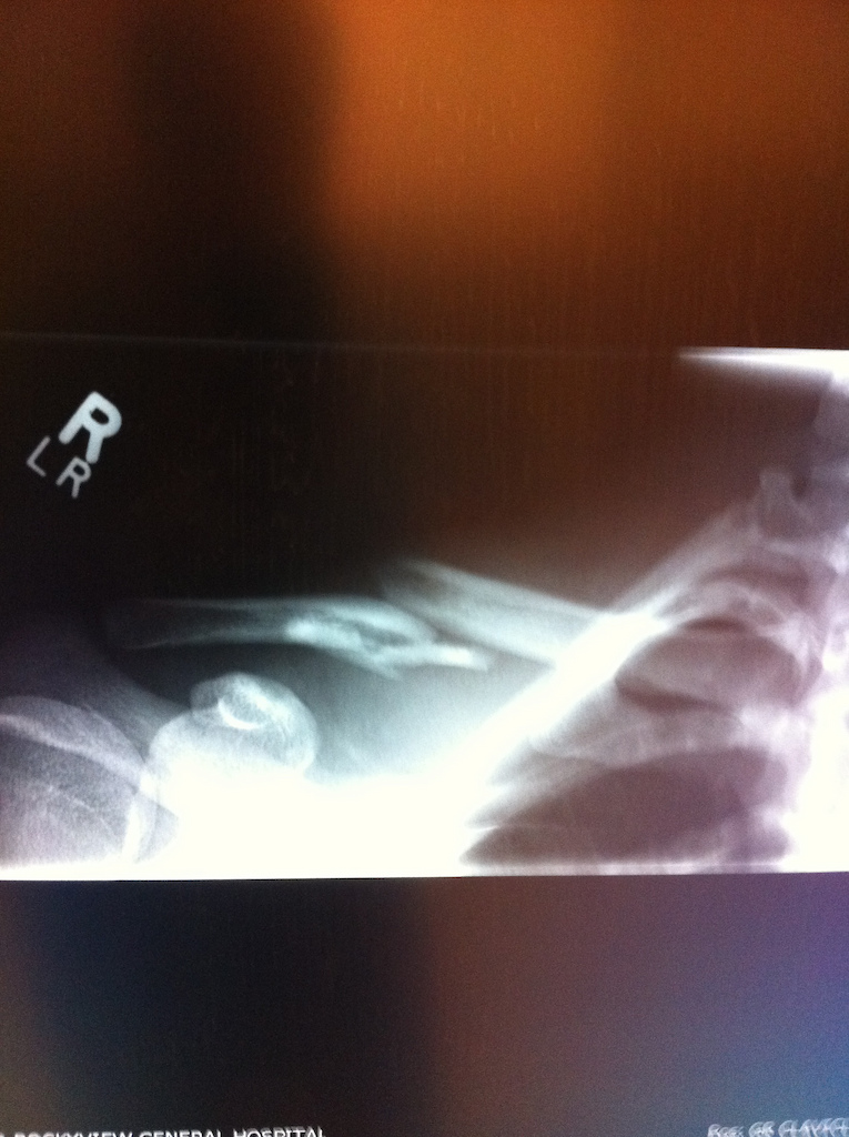 Broken coller bone. And to think I rode a quarter of a trail with that and walked the rest is fuckin lossst  http://www.pinkbike.com/video/210625/ Video of crash...