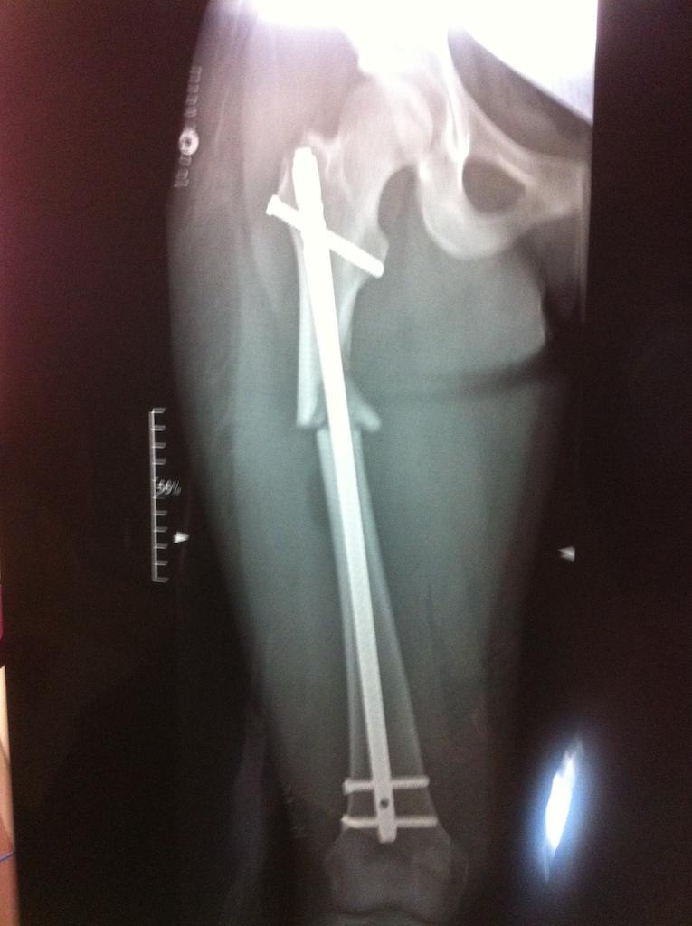 new femur