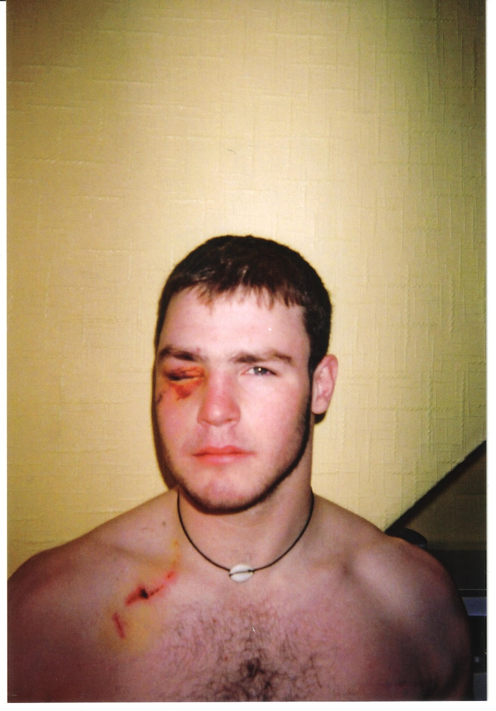 me 15years ago after my first dh race where i forgot to use my hand brake and opted for the favce brake instead. i am now the proud owner of a metal plate in my face that holds my eyeball in the correct position