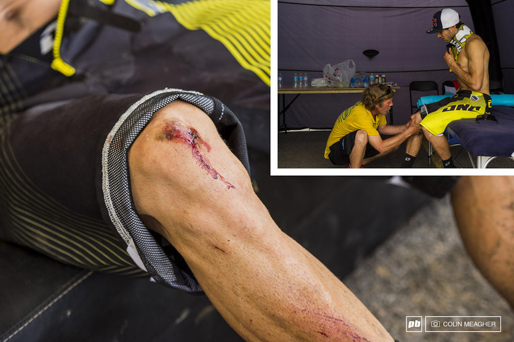 Knee pads only take the edge off a crash at 50 kph the zone where Gee went down is very high speed and loaded with brick sized rocks. Gee was lucky to walk away from that with 18th place and a few bumps bruises and a gashed knee. He should be good to go for the final on Sunday.
