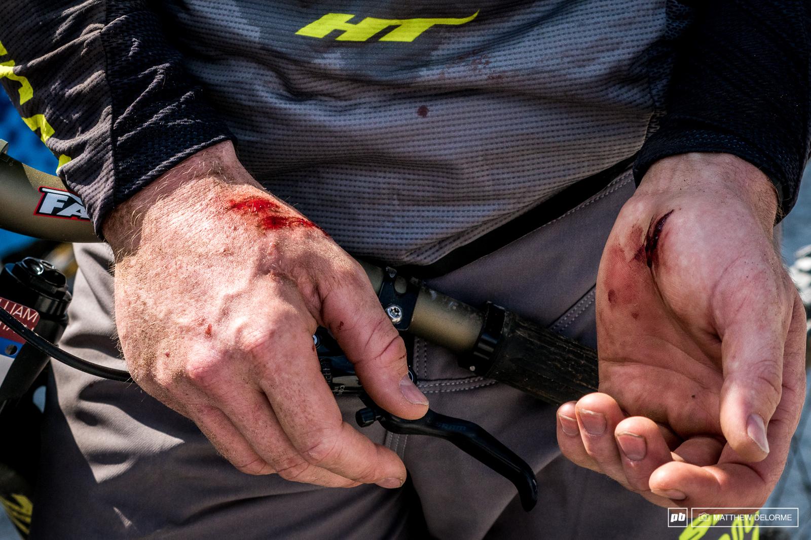 George Brannigans hands after his crash.