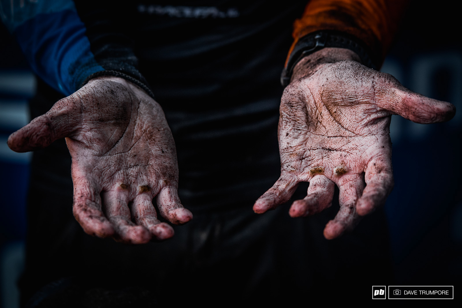 Greg Callaghan s hands after 7 hours on the bike in cold and wet rain.