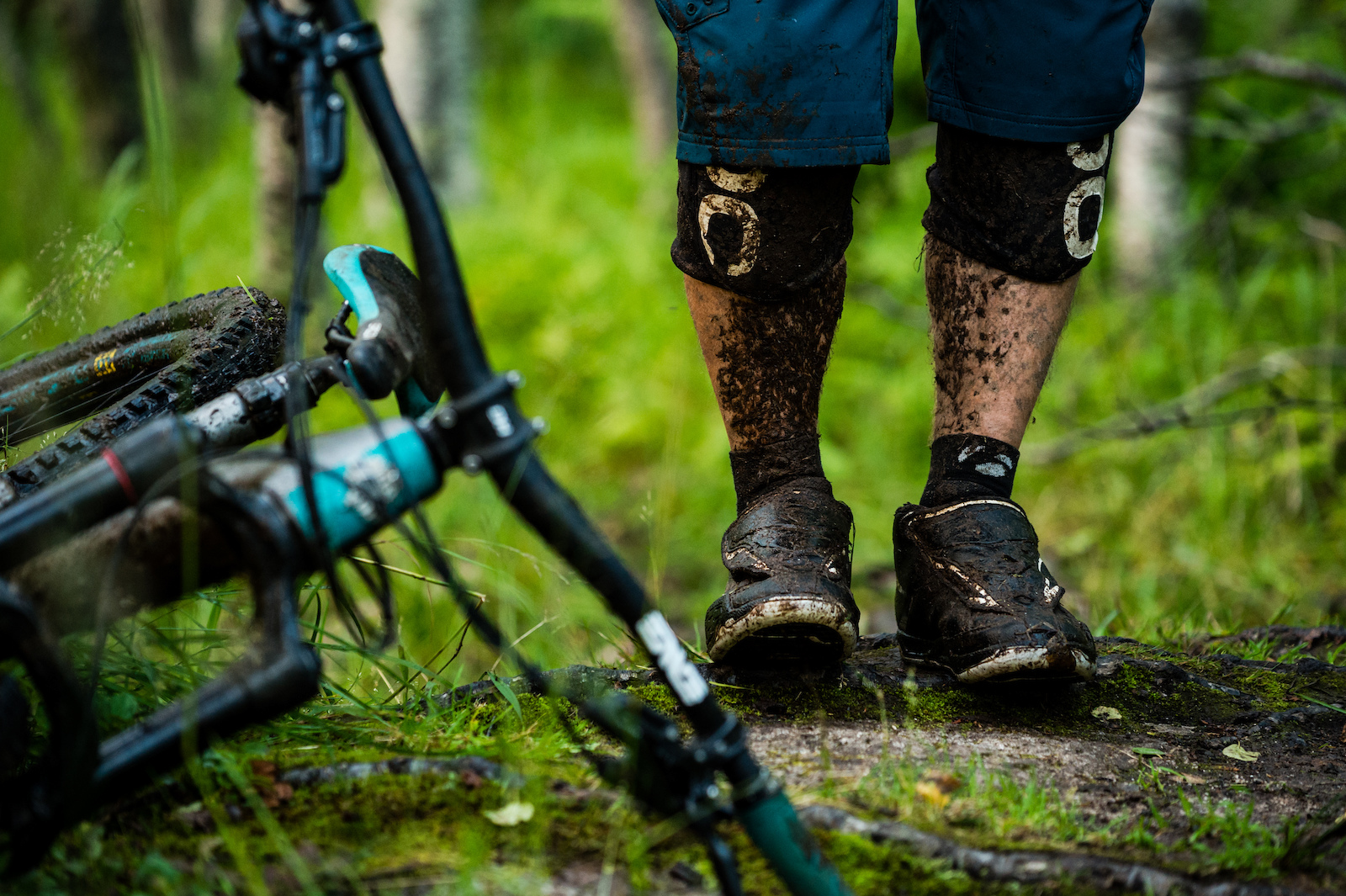 Mikael af Ekenstam s legs after mountain biking in Beisfjord Norway.