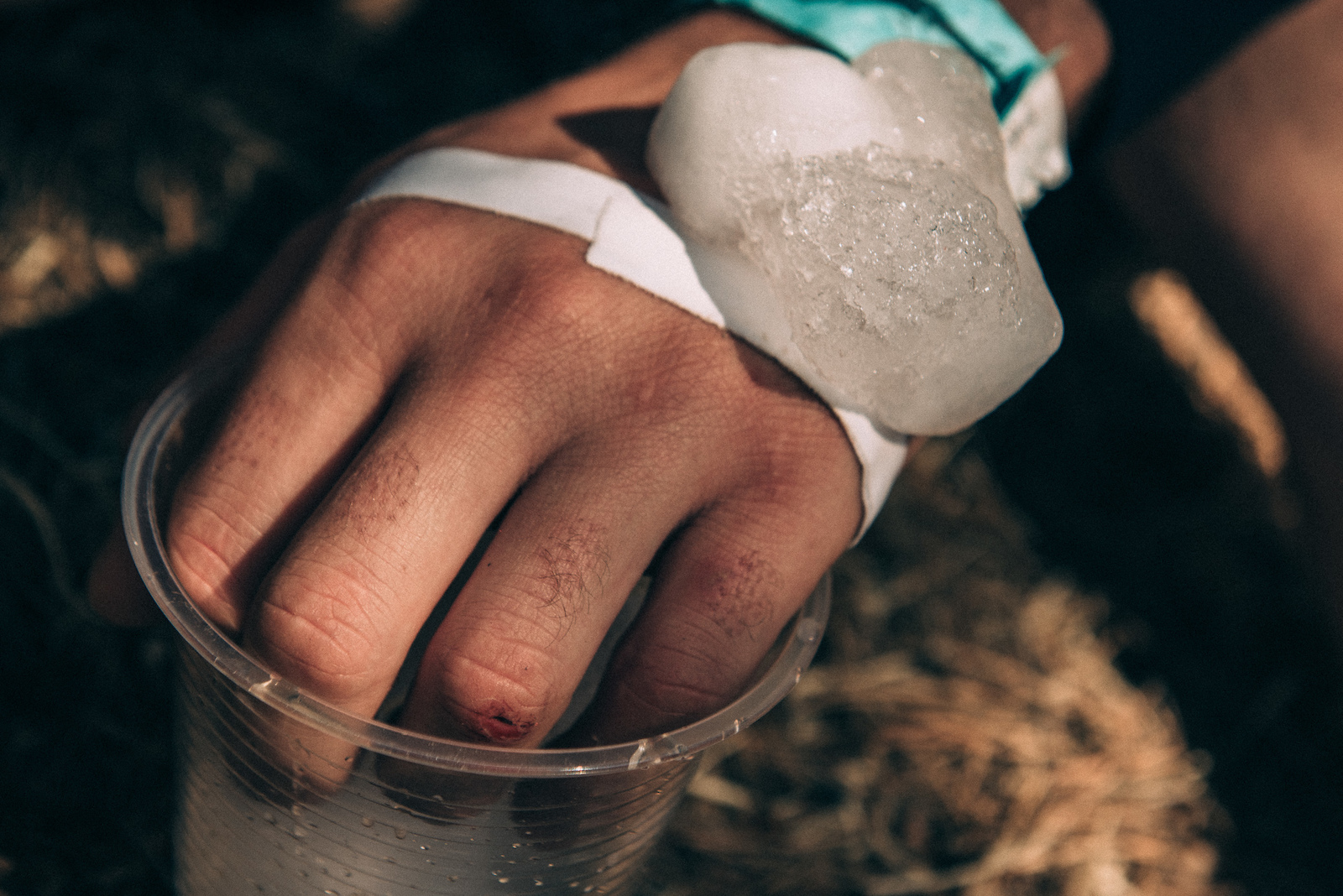 Thomas Lapeyrie smashed his hand in the first stage of the day and was seen icing it down whenever possible.
