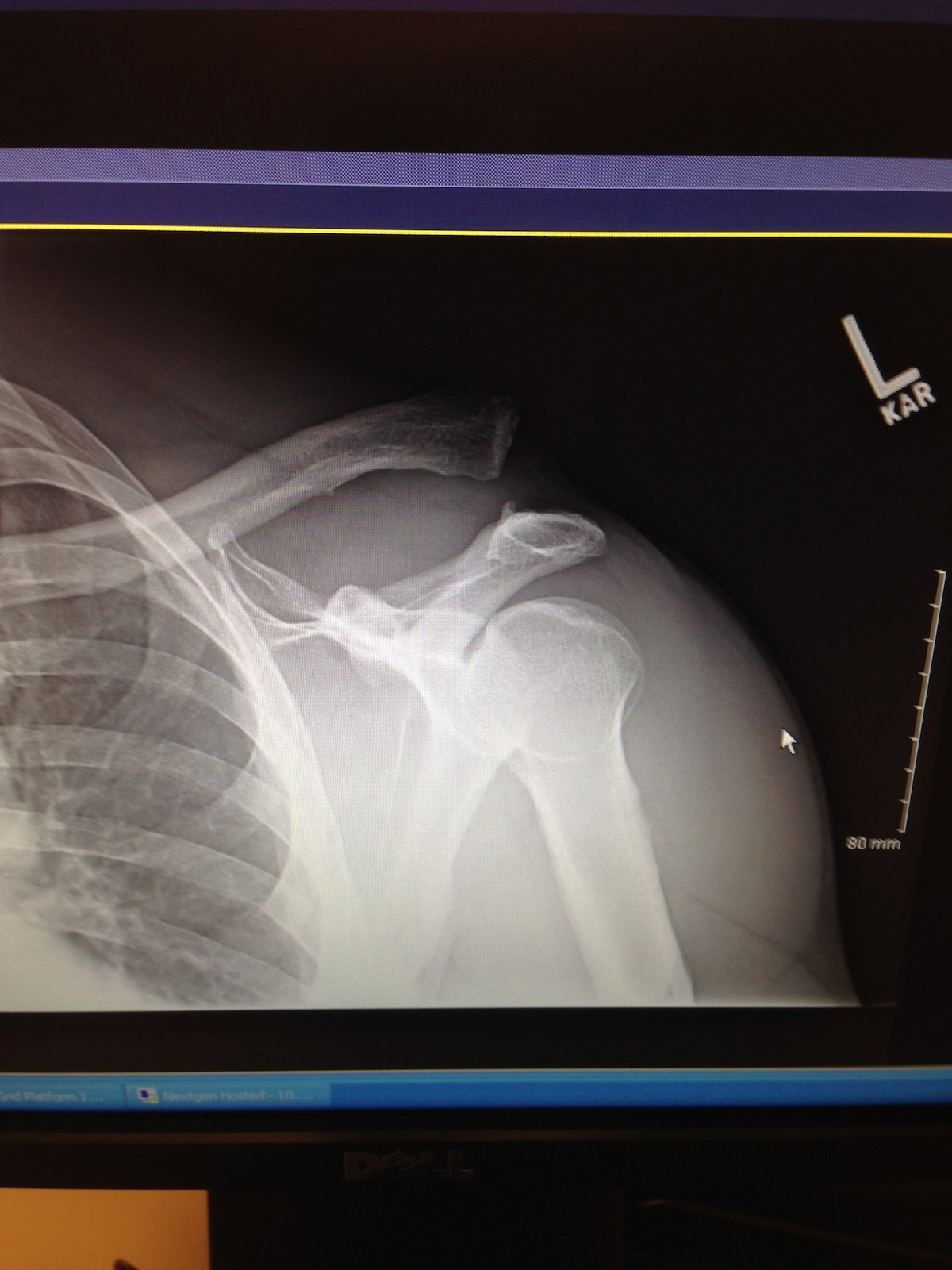 L5 complete separation of left shoulder (my good shoulder) with complete rupture of all ligaments. Titanium hardware, a clean shave of loose cartilage with cadaver tendon inserted. Cause; pretending I was 23 hucking care free, hitting a hip jump and and landing like I was actually 50years old.