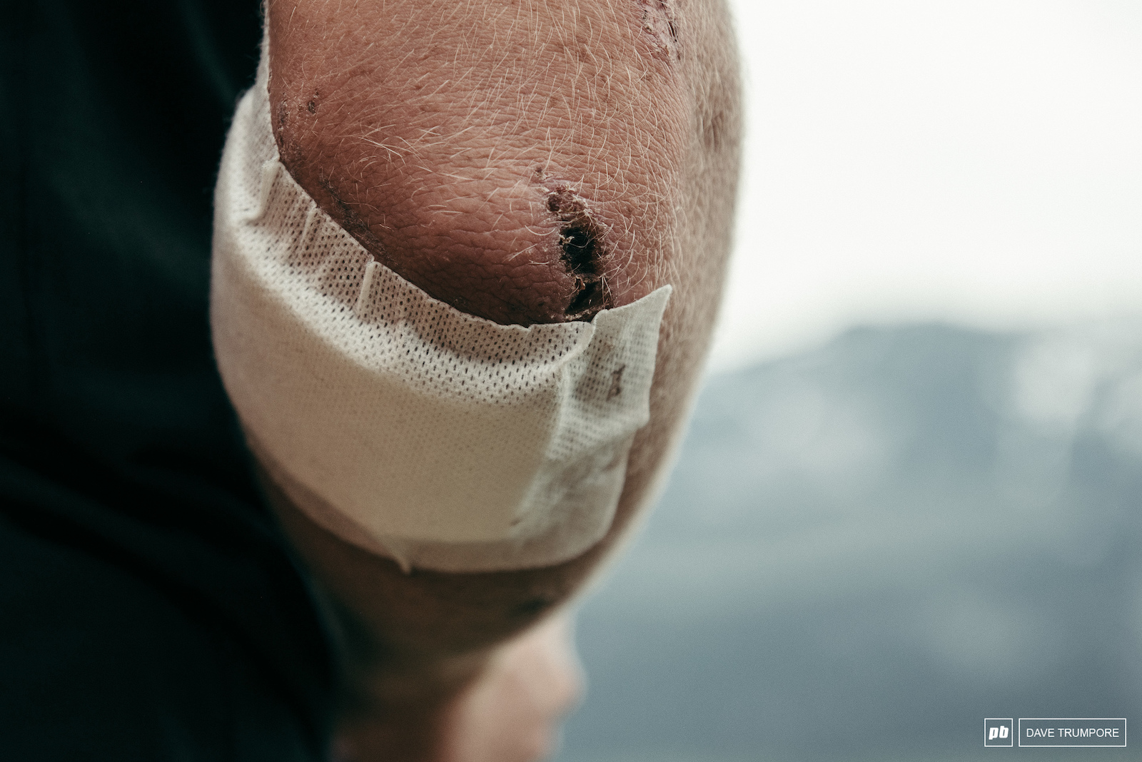Matt are still licking their wounds from Fort William last weekend.