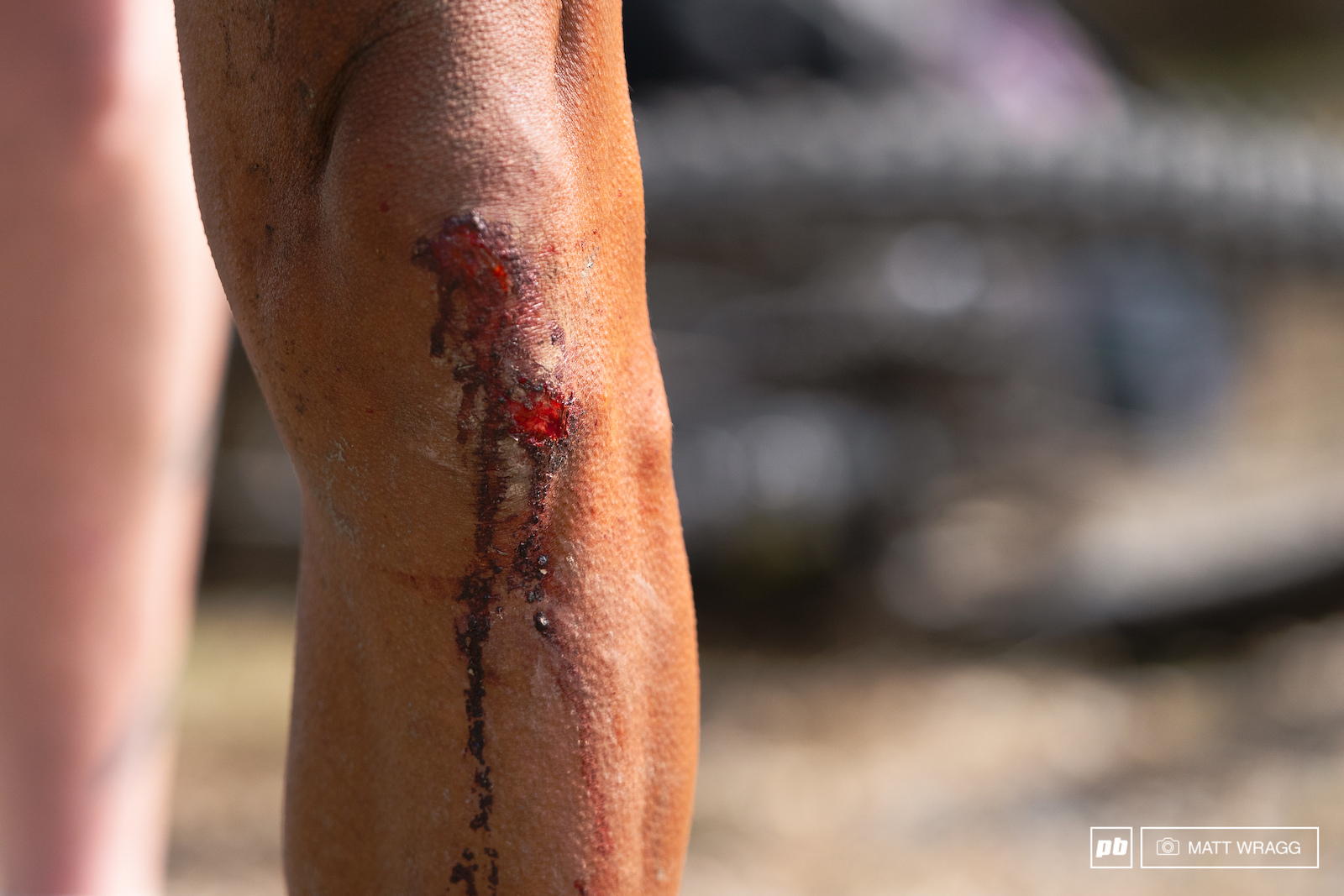 Kneepads were considered and inconvenience by most racers...