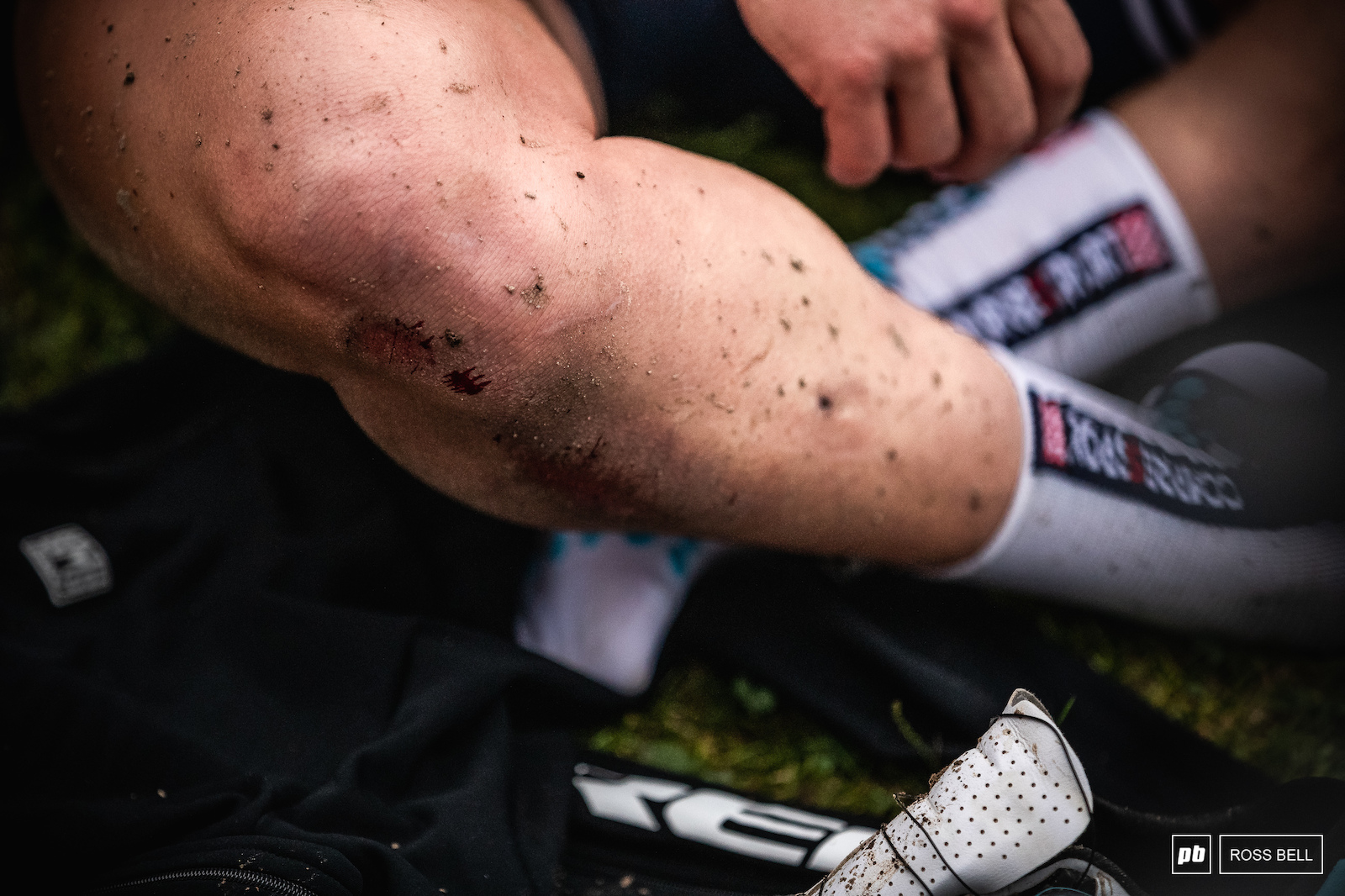 Tarmac is always going to win in a fight against skin. Evie Richards somehow managed to recover from a second to last lap crash to win.